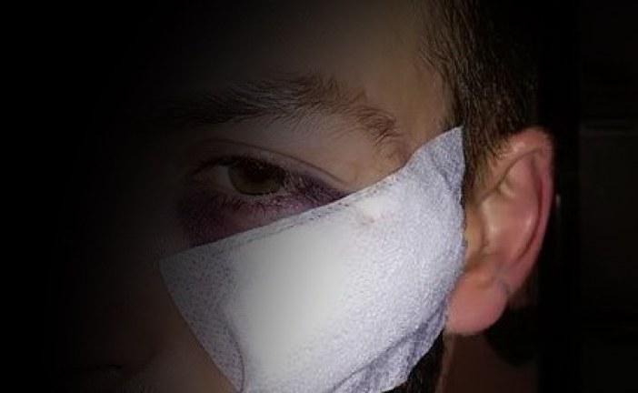 03.02.2019 AT Heidenreichstein: Security mit Flasche im Gesicht verletzt